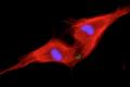 Deux cardiomyocytes néonatals (coloré en rouge) subissant la division cellulaire après le traitement avec NRG1