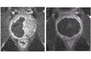 Magnetic resonance images of the prostate gland after treatment with Tookad Soluble. The black regions show the portions of the prostate that have been eliminated to remove the previously detected cancerous tissue