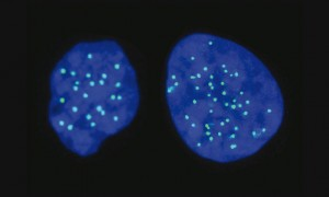 Haploid cell on the left (with 23 chromosomes); Diploid cell on the right (with 46 chromosomes) (with 46 chromosomes) (PRNewsfoto/Yissum)