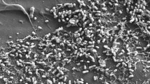 Vue au microscope électronique de bactéries du genre Vibrio dans une expérience de laboratoire / © Erik Zettler / Marine Biological Laboratory / Expéditions Med