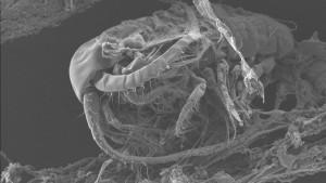 Vue au microscope d'une bactérie sur un fragment de déchet plastique, prélevé en Méditerranée. / © Expéditions Med / Erik Zettler