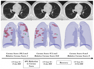 Scannographie pulmonaire du virus Covid-19: à gauche: poumon d'un malade atteint du virus / au milieu: poumon d'un patient en convalescence / à droite: poumon d'une personne en bonne santé Source: https://arxiv.org/abs/2003.05037