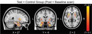 Changements volumétriques dans le cerveau de sujets sains à la suite de la période de confinement (les zones où l'augmentation a été observée, entre autre l'amygdale, responsable de la régulation émotionnelle sont en couleur). Crédit : Centre Strauss de neuroimagerie, Faculté des sciences de la vie, Université de Tel-Aviv.