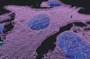 A 3D immunofluorescent image of melanoma cells (magenta) infected with bacteria (turquoise); cell nuclei are blue (picture Samuels Weizmann)